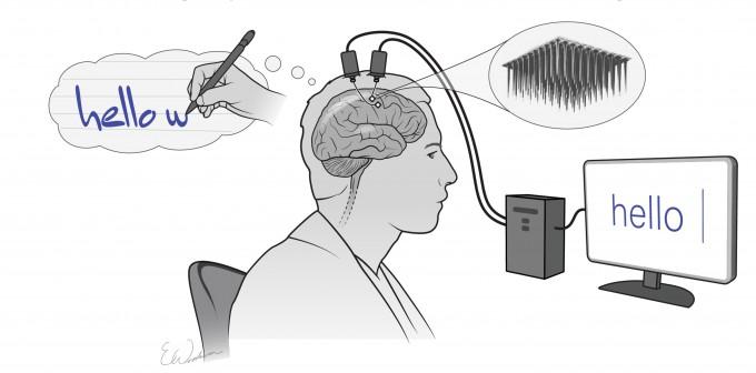 스탠퍼드대 연구팀이 개발한 필기 뇌컴퓨터인터페이스(BCI)는 사지마비 환자가 글쓰기를 상상하면 컴퓨터가 이를 인식해 글자로 변환한다. 스탠퍼드대 제공