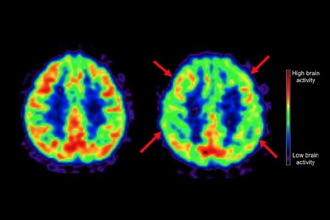 육류, 설탕이 많은 서양식 식단(오른쪽)을 섭취한 사람들의 뇌는 지중해식 식단을 따른 사람들에 비해 활동성(화살표)이 떨어진다는 연구도 나왔다. 신경학 제공