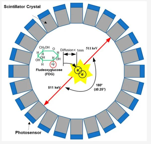 양전자방출단층촬영(PET)의 원리다. 포도당 분자에서 수산기(-OH) 하나가 불소18로 바뀐 불화데옥시포도당(FDG)은 체내에서 반감기가 110분인 불소18이 산소18과 양전자로 바뀐다. 방출된 양전자는 전자를 만나 소멸하면서 질량에 해당하는 고에너지 광자(감마선) 한 쌍을 내놓고 이를 검출해 위치를 추측한다. 센서스 제공
