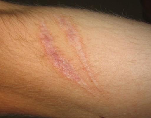 [강석기의 과학카페]피부에 흉터 남기지 않고 나을 수 있을까