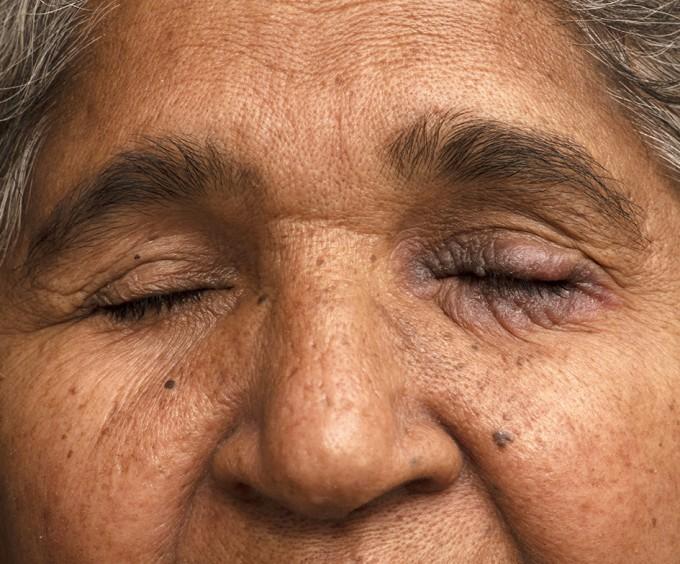 자극성 접촉피부염 환자. BMJ 제공