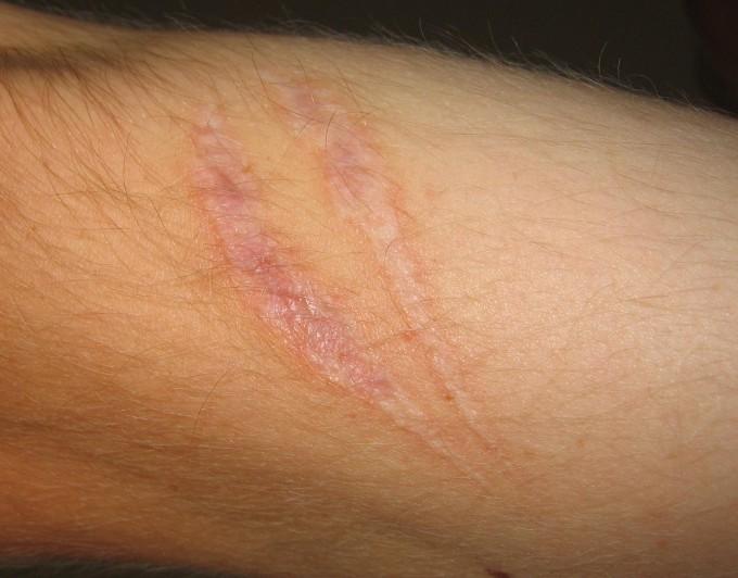 살다보면 피부에 이런 저런 상처가 나고 때로는 흉터가 남기 마련이다. 흉터 없이 상처를 치유하는 방법을 찾는 건 피부 연구자들의 꿈이다. 위키피디아 제공
