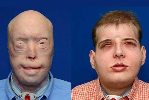 화재로 얼굴 잃은 美 소방관, 안면이식술로 얼굴 되찾았다
