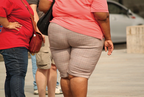 후천적 비만의 원인, 단초 밝혔다