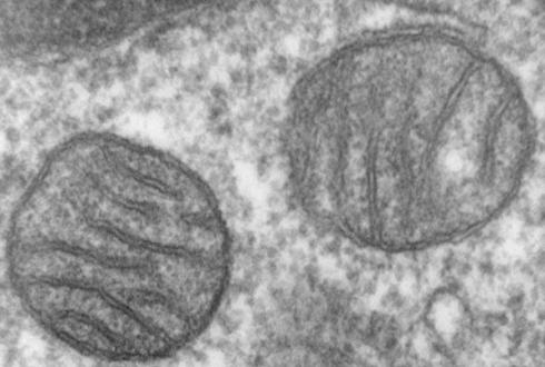 세포 속 '발전소'에서 신경암 해법 찾았다