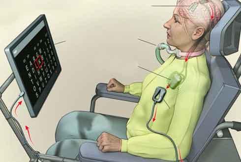 생각만으로 컴퓨터에 단어 입력… '뇌 임플란트' 시대 오나