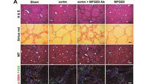 국내 연구팀, 간경화 치료하는 줄기세포 단백질 발견