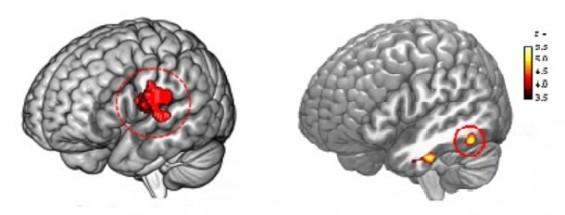 언어능력 결정짓는 유전적 요인, 뇌신경세포 밖에도 있다