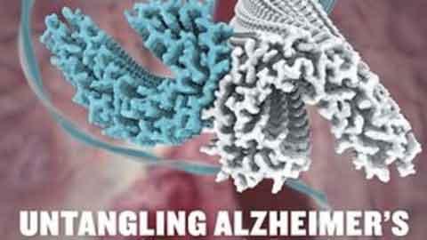 치매 악화시키는 타우 단백질 정밀 구조 밝혔다