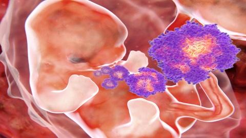 지카 바이러스 소두증, 유전자 이상이 원인이었다