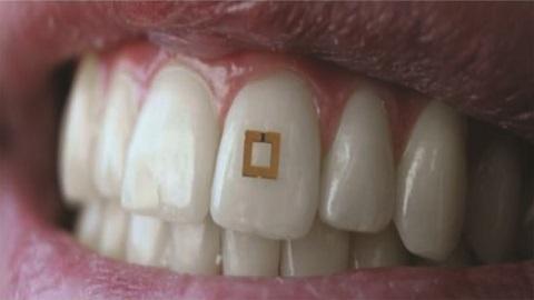 다이어트 식단관리, 패치형 치아 센서로 해결