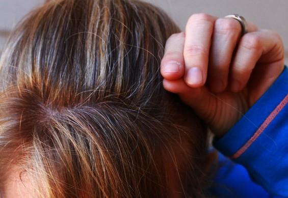 젊은이의 흰머리, 유전자 돌연변이 탓