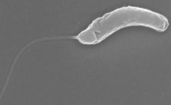 UNIST, 만성질환 원인 병원균 생물막 먹어치우는 박테리아 특성 발견