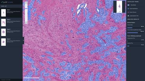 바이오마커가 못찾은 약효 통할 환자 52%…국산 의료AI 면역항암제 효과 입증