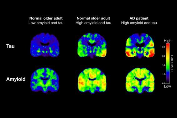 알츠하이머 치매 유발 노폐물 치우는 '경찰세포' 메커니즘 밝혔다