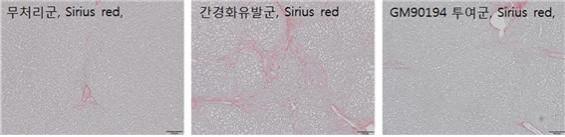 화학硏, 간경변 치료제 새 후보물질 개발