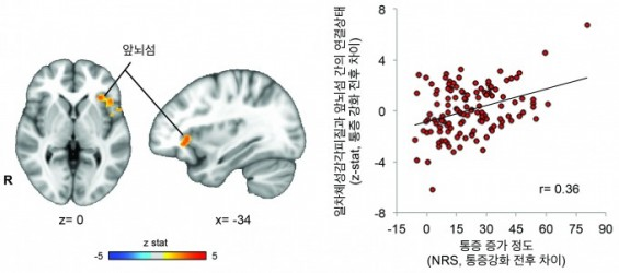만성요통 환자 자극선별 세포와 통증감각 처리 뇌 영역 유독 발달