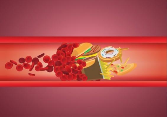 혈중 콜레스테롤이 높은사람 콜레스테 섭취 제한해야