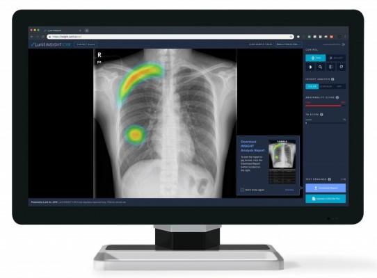 의료AI 기업 '루닛' 300억 원 시리즈C 투자 유치