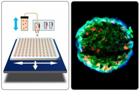 3D 바이오프린팅으로 인공 방광암 조직 만들었다