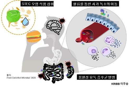 '햄버거병' 일으키는 독소 신속 진단…휴대형 기기 개발