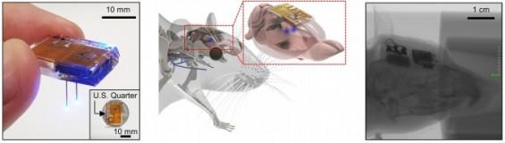 스마트폰처럼 무선 충전 가능한 뇌 이식 장치 만들었다