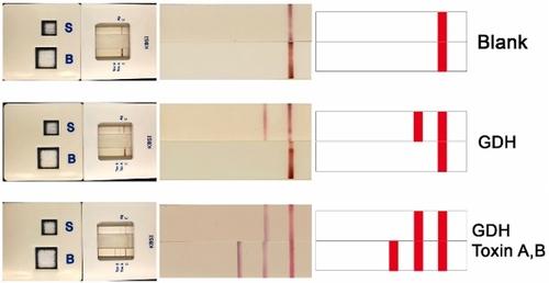 최고 위협단계 슈퍼박테리아 10분 만에 검출…정확도 95%