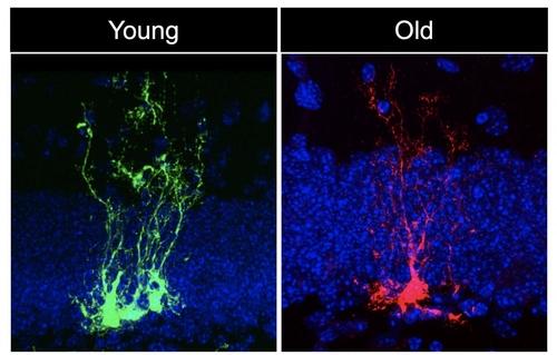 나이 들면 함께 늙는 뇌, 신경줄기세포로 회춘할 수 있다
