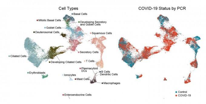 코로나19 환자의 콧속 세포를 유전자분석했다. 왼쪽은 세포 유형, 오른쪽은 코로나19에 잘 걸리는 세포를 나타냈다. 브로드연구소 제공