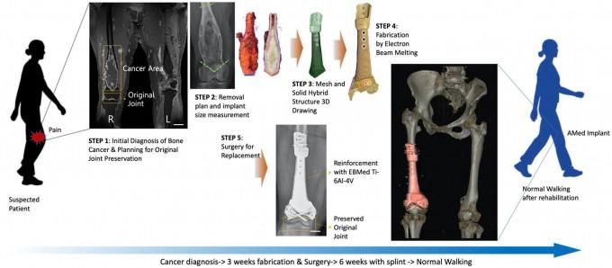 3D 프린팅으로 만든 임플란트를 이용한 뼈암 치료 진행과정. 1단계 뼈암의 최초진단 및 관절보전을 위한 수술 기획. 2단계 종양절제범위 계획 및 그에 따른 골결손 크기 측정. 3단계 임플란트 설계. 4단계임플란트를 제작. 5단계 제작된 임플란트를 환자의 뼈가 제거된 부위에 삽입하고 봉합. UNIST 제공