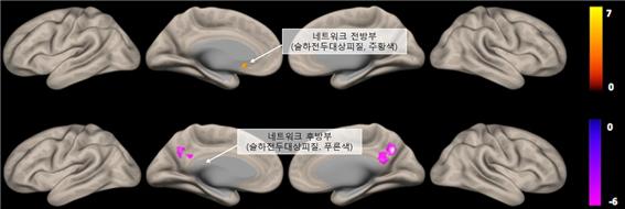 디폴트모드네트워크는 대뇌 중요 네트워크 중 하나로 사람이 인지 활동을 하지 않을 때, 즉 멍한 상태이거나 몽상에 빠졌을 때 활성화 되는 뇌의 특정 부위다. 여의도성모병원 제공