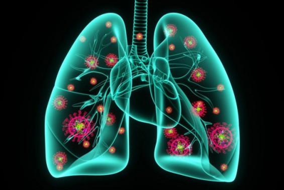코로나19 위중증 환자의 생과 사, 폐에 바이러스 얼마나 쌓이냐에 달렸다