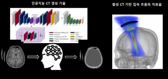 MRI만으로 CT영상 생성하는 AI 개발…경두개 집속 초음파 시술까지 입증