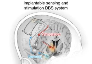5년간 우울증 앓던 환자가 뇌 전기자극 치료로 웃었다